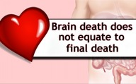 Brain death does not equate to final death